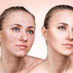 از هیدرودرمی یا آبرسانی پوست چه می دانید؟